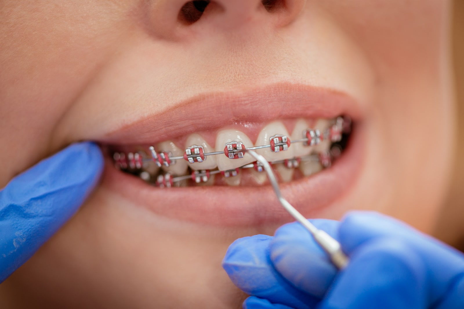 rögzített fogszabályzó - Royal-Dent - szebbfogsor